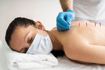 Essential Factors to Consider When Choosing an Acupuncture Practitioner
